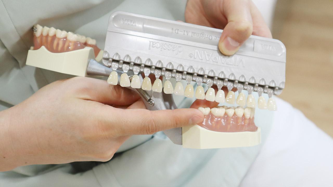 スケールで確認する歯の色戻り